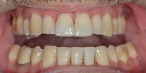 עקירת שיניים קבועות 1