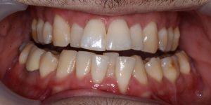 עקירת שיניים קבועות 2