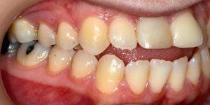 עקירת שיניים קבועות 3