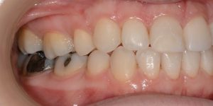 עקירת שיניים קבועות 4
