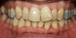 צפיפות שיניים(640x280)